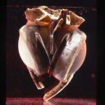 The First Artificial Heart