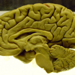 The Brain – Sagittal Section