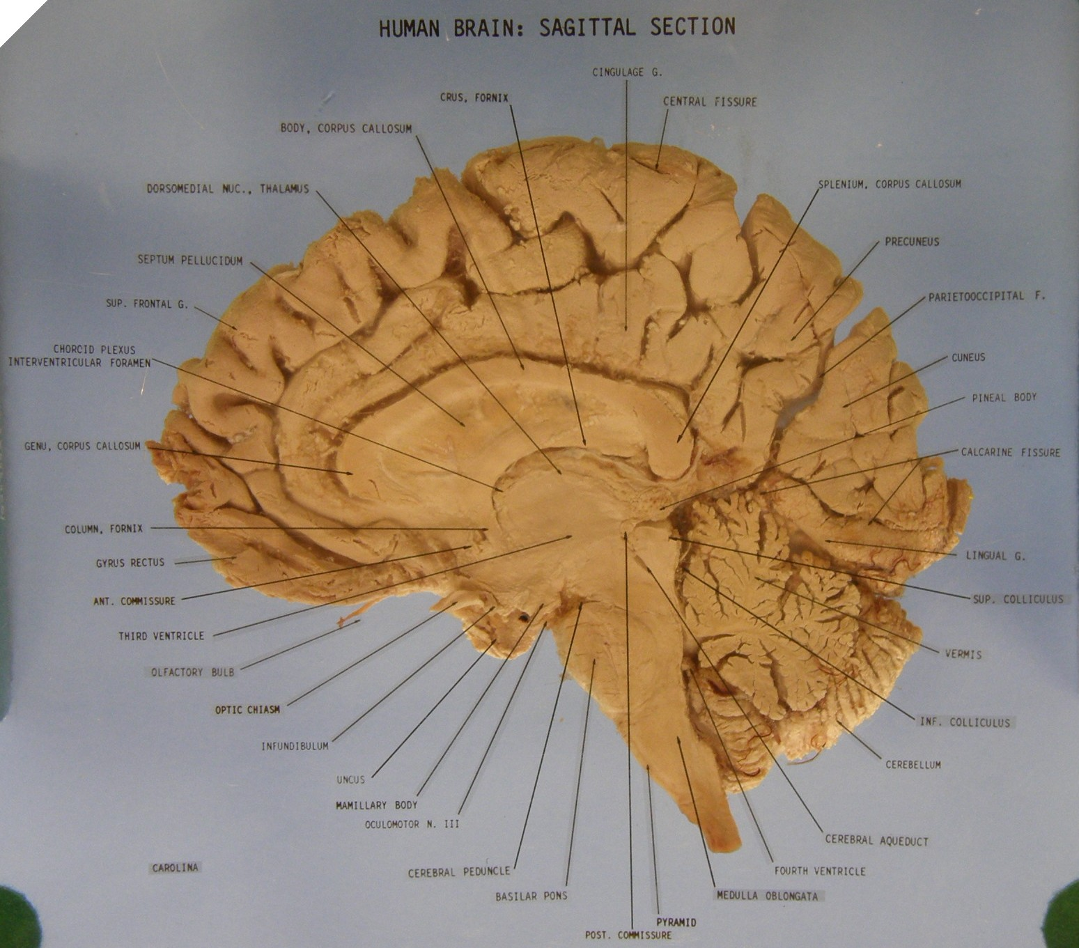 Brain sections anatomy
