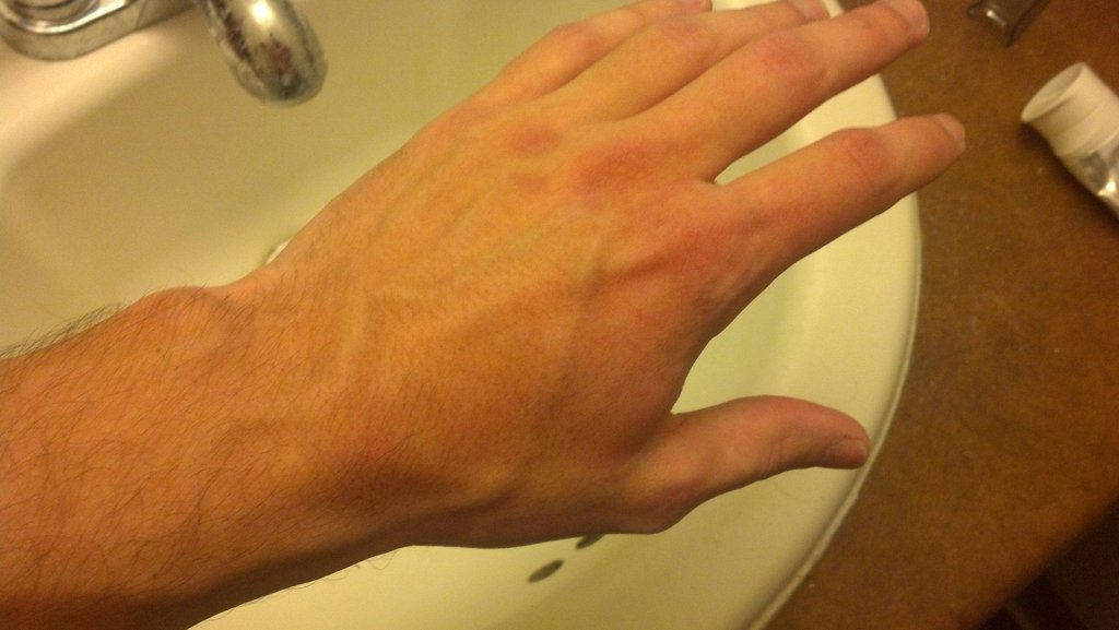 Sudden brown spots on hands - Doctor answers on HealthTap