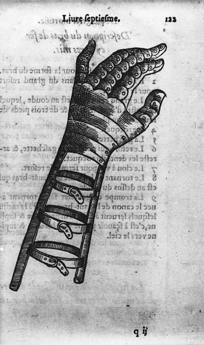 16th Century Prosthetic Hand and Forearm Ambroise Paré