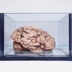 The World's Most Famous Brain