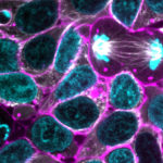 Gene Edited, Human induced Pluripotent Stem Cells (iPSCs)